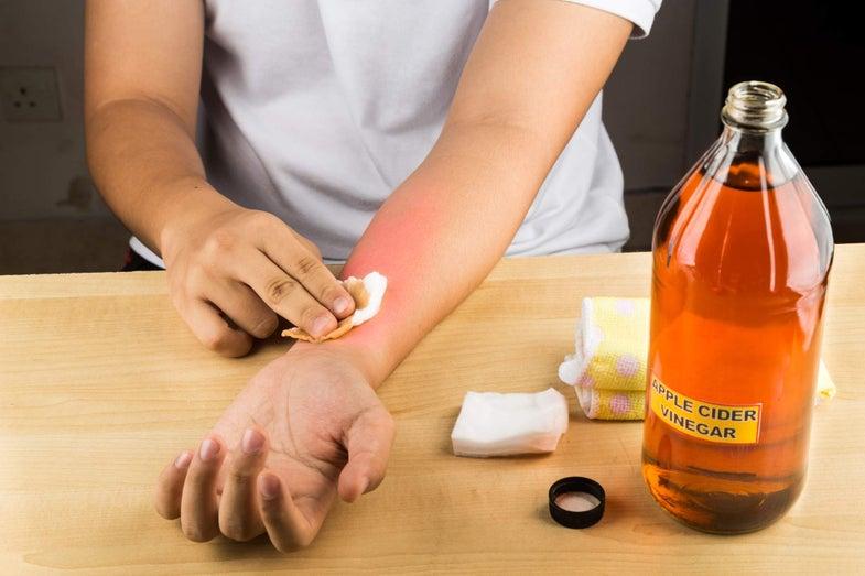 Giấm táo đậm đặc có thể gây bỏng da
