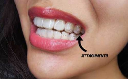 invisalign bristol attachments