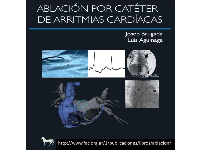 Ablación por Catéter de Arritmias Cardíacas | Centro