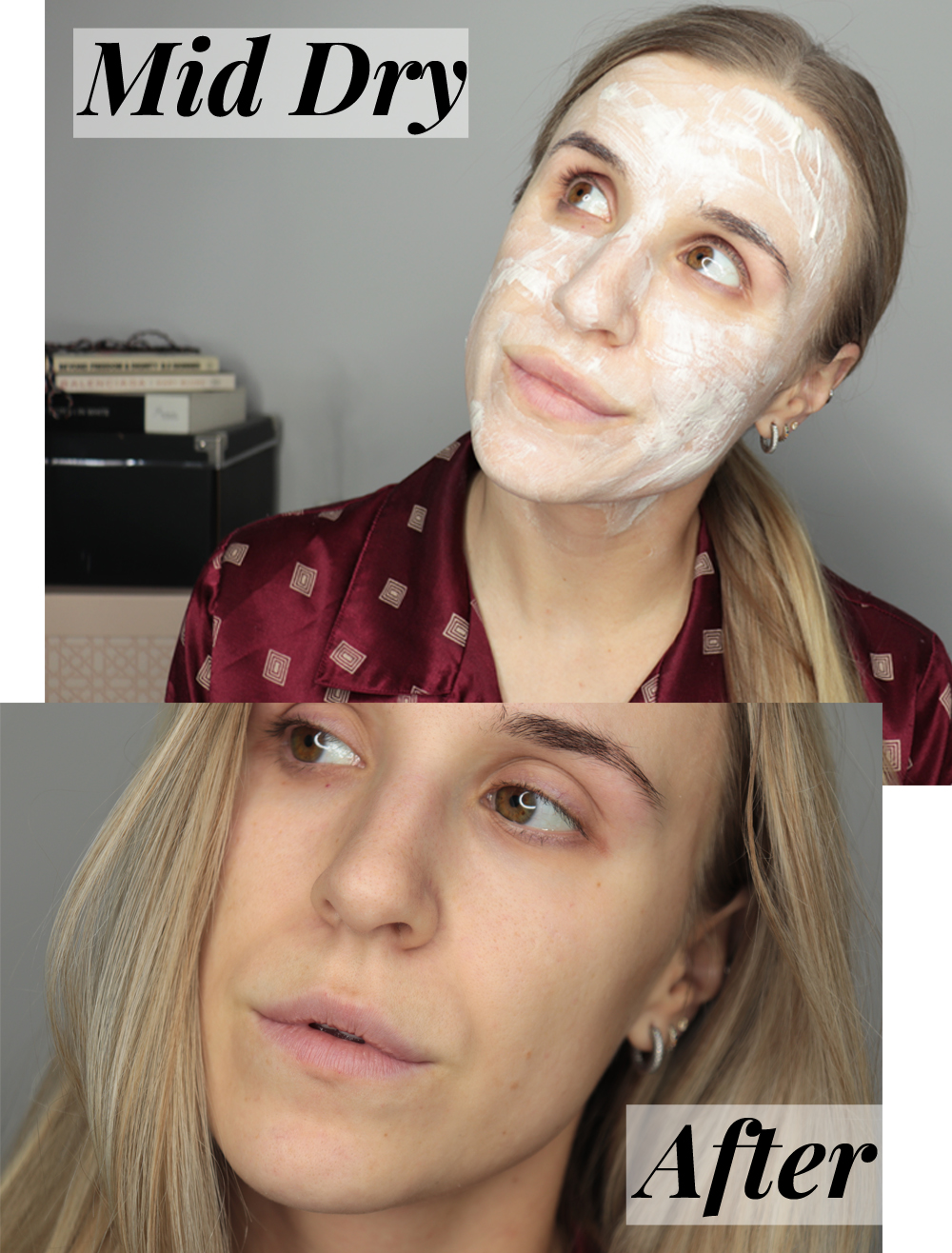 Dr Dennis Gross Sulfur Mask before and after