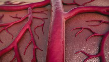 Як відновити еластичність судин. Народний засіб, який поставить вас на ноги