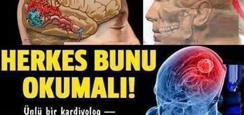 Beyin kanaması nasıl anlaşılır