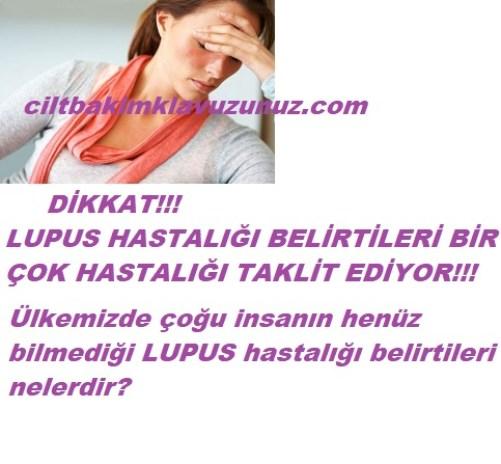 Lupus hastalığı belirtileri nelerdir