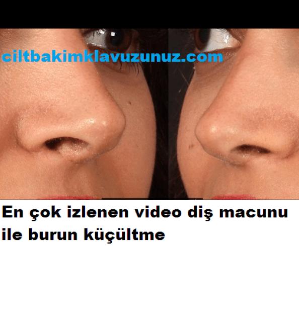 En çok izlenen video diş macunu ile burun küçültme