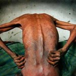 """Le immagini drammatiche del """"villaggio dell'Aids"""" nel Henan"""