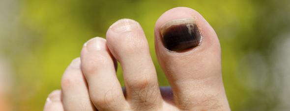 Black Toenails? How Running Affects Your Toes and What You Can Do