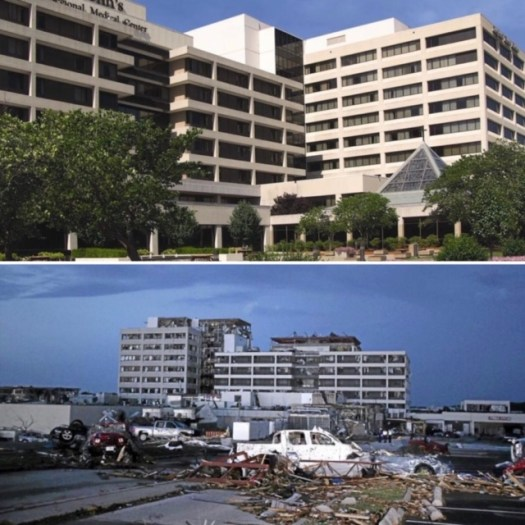 St John's Hosptial Before and After