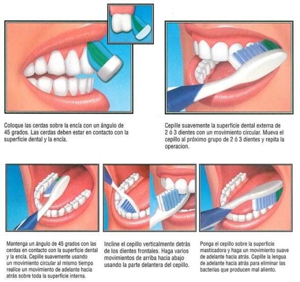 Cepillado correcto de los dientes