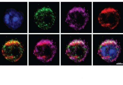 Científicos descubren proteína que podría atacar el cáncer