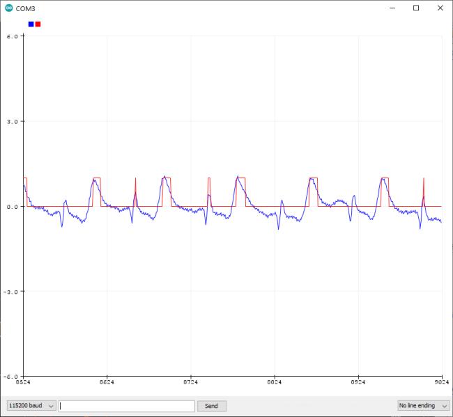 Upside-Down-Labs-BioAmp-EXG-Pill-ECG-Pulse-Rate-Serial-Plotter-1