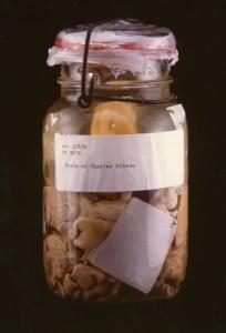 Anatomical specimen in a glass jar.