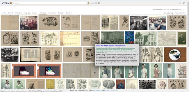 Page of images from the Images from the History of Medicine in Open-i.