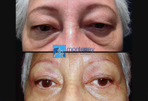 Cirugía de Párpados, fotografías de resultados del Dr. Josue Lara Ontiveros, de Cirugía Plástica Monterrey.