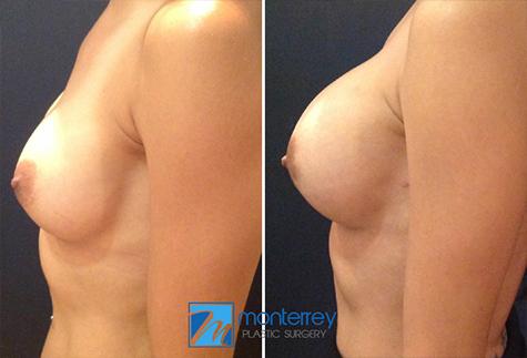 Cirugía de Aumento de Senos, fotografías de resultados del Dr. Josue Lara Ontiveros, de Cirugía Plástica  Monterrey.