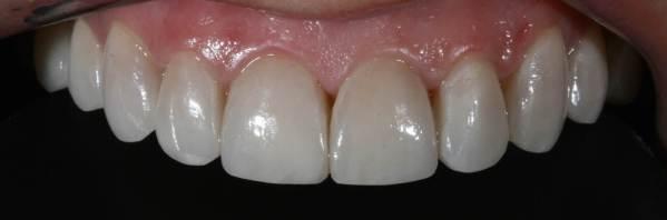 carillas después de ser talladas según la forma natural previa y preferencias del paciente.