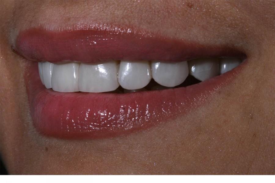 dental platinum veneers without sculpture in Benidorm, Alicante