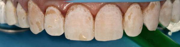 colocación del hilo de retracción en el margen gingival y gravado de la superficie del diente con acido ortofosfótico (gravado reversible).