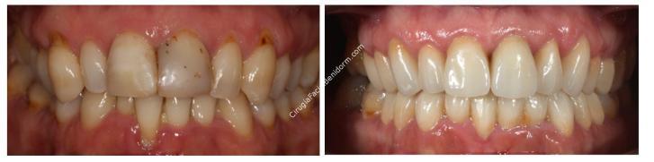 Estética Dental Paciente Tipo III