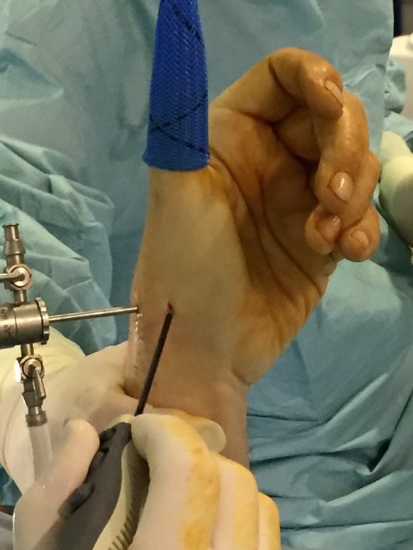 Rizartrosis - tratamiento