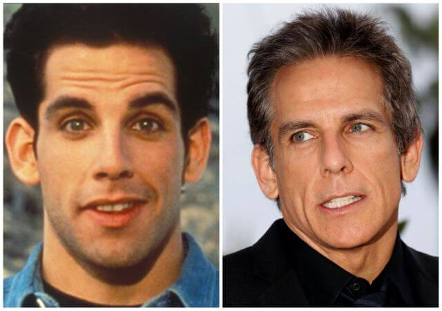8.Otoplastia Antes y Después: Ben Stiller