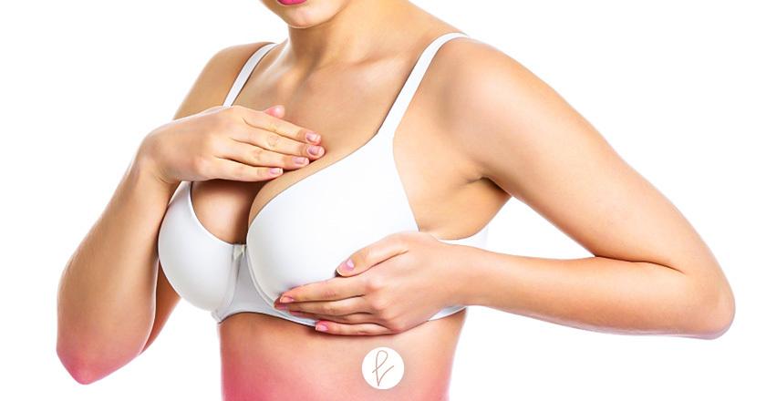 Ventajas de la mamoplastia en la paciente
