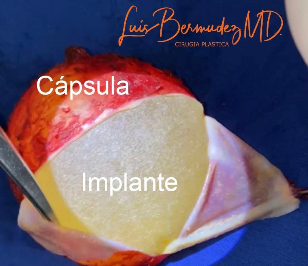 cápsula e implante