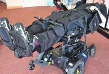 Photo of El Dr. Scott Morgan está a una cirugía final para convertirse en el primer Cyborg completo del mundo
