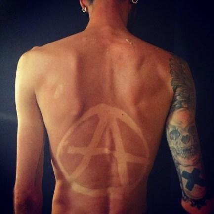 Tatuji iz sončnih opeklin