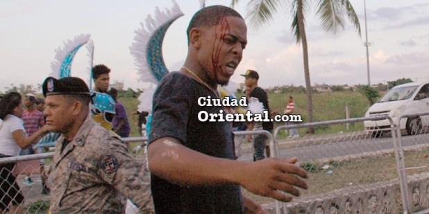 Un carnavalero herido corre por su vida