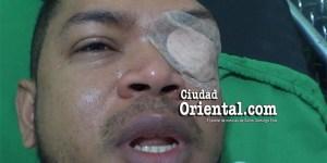 Manrique de la Cruz, empresario golpeado por funcionario del ASDE