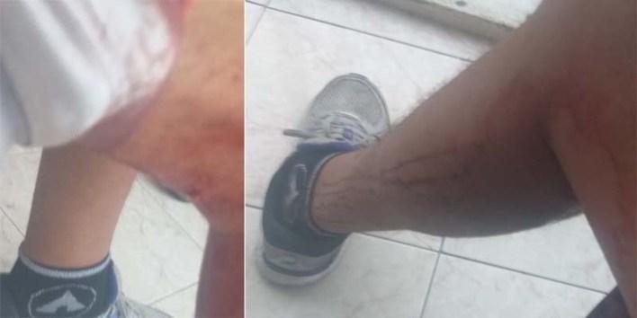 El periodista Juan Francisco Pérez Ruiz muestra laceraciones en las piernas causadas por la golpiza