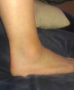 Right ankle, <24 hours after the injury.