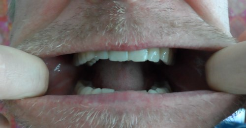 facial isometrics mouth exerciser