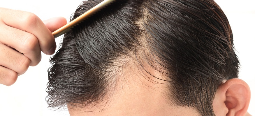 Two cheap hair loss treatment options for men that really work
