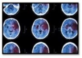 PET Scans Show Benefits of Chiropractic