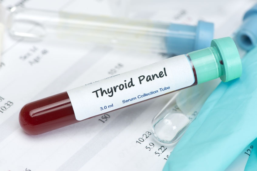 Thyroid Testing Explained