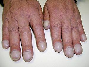 Hippocratic fingers