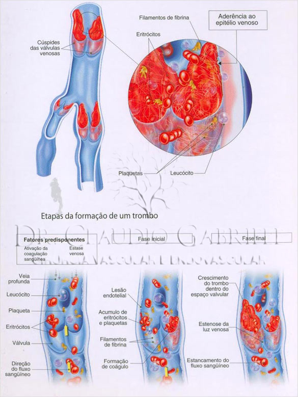 trombose venosa dr claudio gabriele
