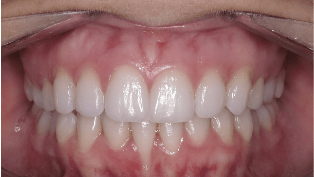 Severe overbite/ overjet after Invisalign treatment