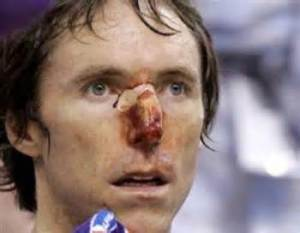 Nash plays through a bad nose injury.
