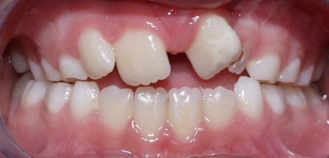 Malpositions dentaires, béance dentaire antérieure