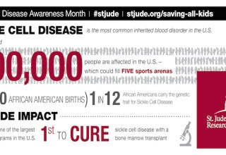 SCD Infographic #sicklecell #30forsicklecell