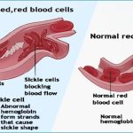 Health Moment: Sickle Cell and An Ileus