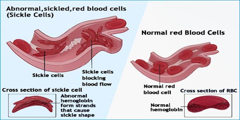 Sickle Cell and Ileus #health #sicklecell #paincrisis