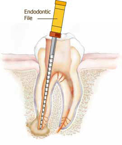 root canal drill sample image