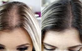 4 dicas essenciais para acabar com a queda de cabelo.