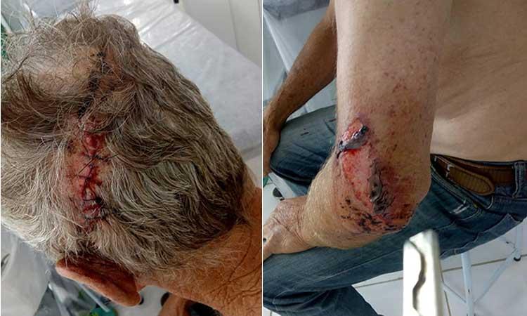 Idoso sofreu assalto e foi agredido a pauladas em Tapes