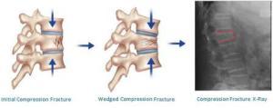 Thoracic Fracture  Broken Mid Back