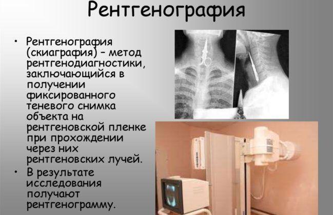 En los primeros síntomas que vale la pena ponerse en contacto con el médico.