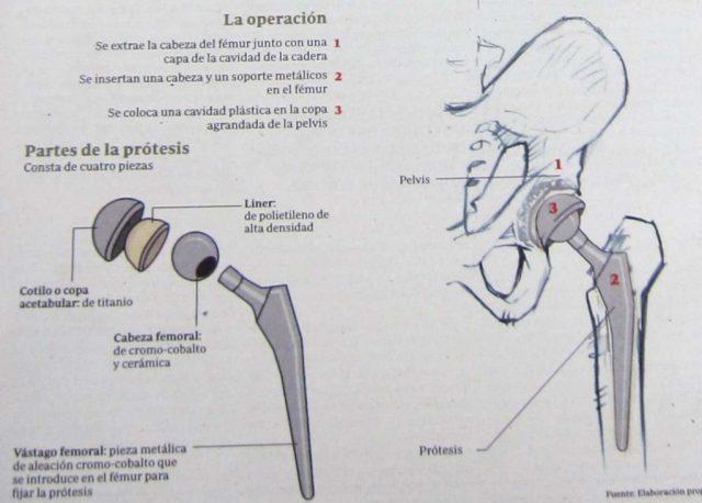 Prótesis de Cadera. Artrosis de Cadera, SPORTME SEVILLA